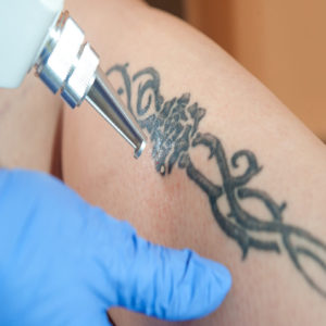 tattoo removal / laser tattoo removal from leg
